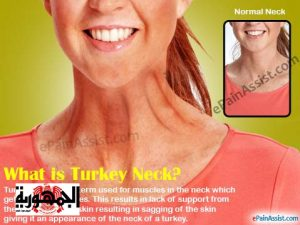 what-turkey-neck