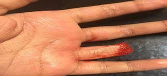 عاجل بالشرقية  : عامل يقطع إصبع زوجته بسنجة  لرفضها تسجيل منزلها باسمه والتفاصيل...