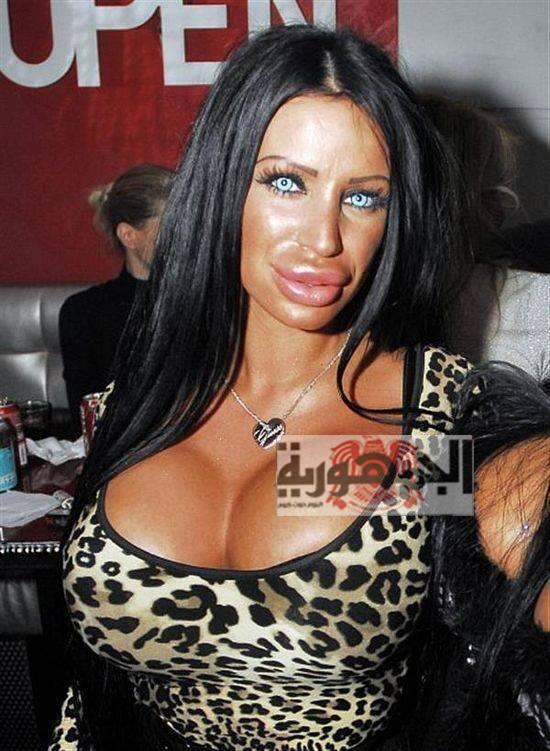 بالصور :أفشل عمليات التجميل التي حكمت علي أصحابها بالموت