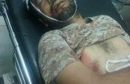 عدن /استشهاد نائب مدير شرطة بئر فضل برصاص مسلحين