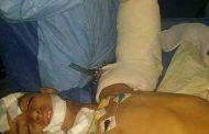 ملائكة الرحمة بمستشفي التيسير بالزقازيق تنقذ طفل قبل بتر ذراعة