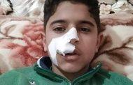 مشاجرة بين طلاب مدرسة الشيخ درغام تسفر عن إصابة تلميذ بجرح قطعي بالوجه.....بدمياط