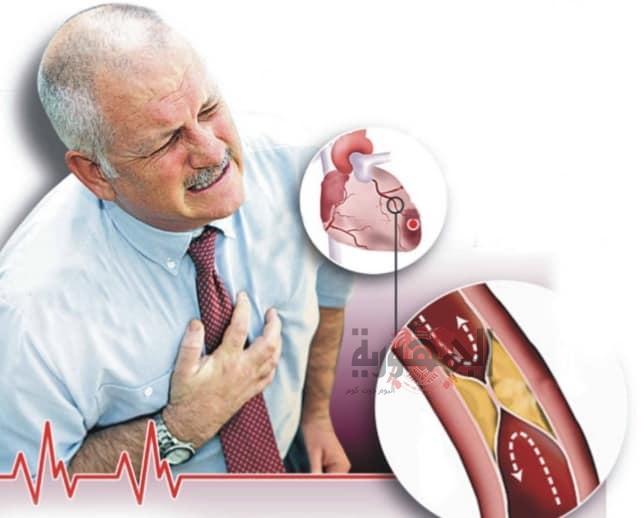 تصلب الشرايين وهو مرض أصبح شائعاً أسبابه وأعراضه وطرق الوقاية منه