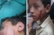 طالب الثانوي يشوه وجه زميله بآلة حادة في الدقهلية